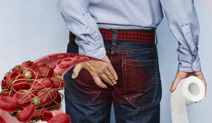 Що таке тромбоз гемороїдального вузла?